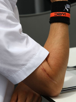 Scar on the arm of Robert Kubica,  BMW Sauber F1 Team