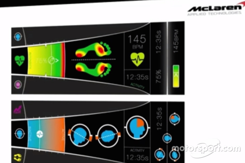 Display sensore biomedicale McLaren