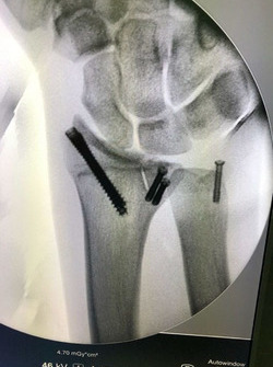 Muñeca de Joan Barreda tras la operación