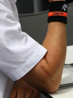 Scar on the arm of Robert Kubica,  BMW Sauber F1 Team